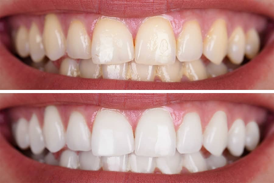 teeth whitening before after turkey