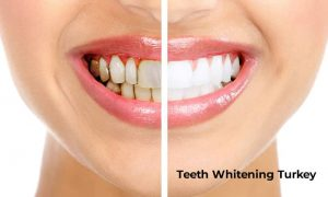 teeth whitening turkey istanbul