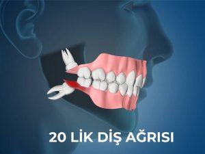 20 lik diş ağrısı nasıl geçer